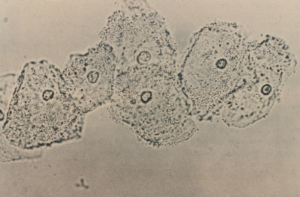 Clue cells, vaginal epithelial cells with adherent pathogenic bacteria of BV